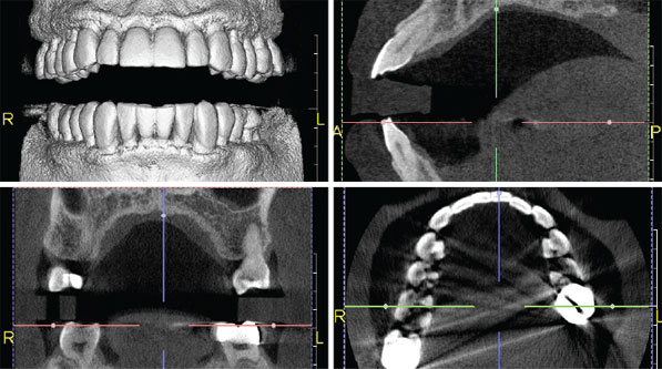CT or CBCT scan